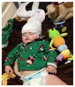 EEG part deux