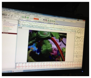 Video EEG screen